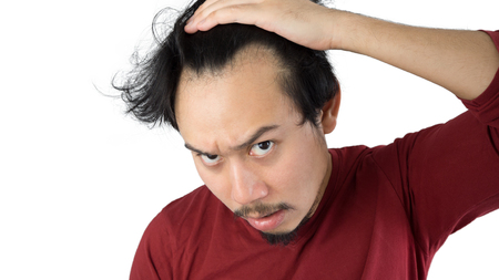 Asian man is getting bald in isolated white background.