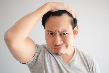 Shocked face of Asian man find himself lost hair and get bald in grey t-shirt.