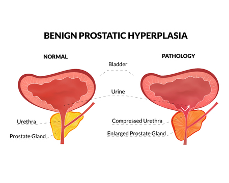 Benign prostatic hyperplasia is an non lethal pathology with timely treatment
