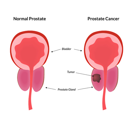 Tumor in prostate gland is a common cancer harbinger