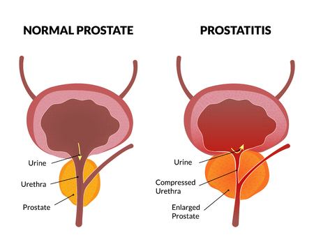 Prostatitis can cause cancer tumors without urgent treatment infographic
