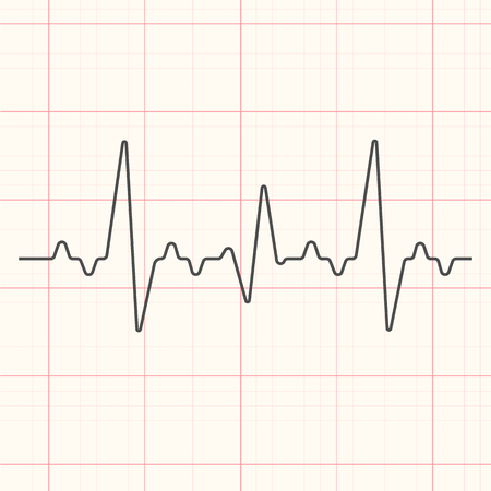 Black cardiogram line illustration on red grid medical background.