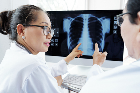 Radiólogos discutiendo radiografía de tórax