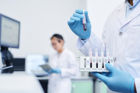Preparación de muestra médica para investigación de virus Foto de archivo