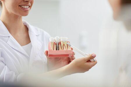 Primer plano de una mujer dentista sonriente apuntando al modelo de diente mientras consulta al paciente en la clínica, espacio de copia