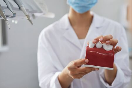 Closeup female dentist holding tooth model while consulting patient in clinic, copy space