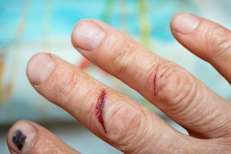 Traumatisierten durch die Finger der Hand des Menschen