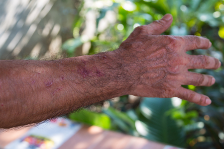 arm of old man who have rash because skin allergy