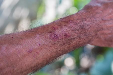 arm of old man who have rash because skin allergy close up 版權商用圖片