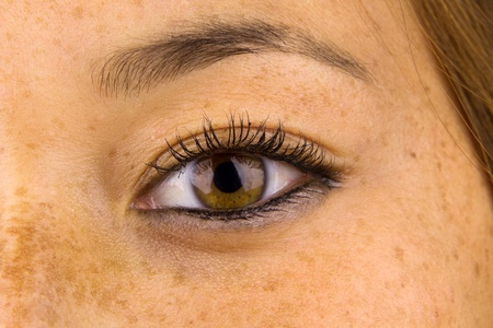 freckles: Close up of woman eye and surrounding skin showing sun damage, commonly known as freckles. Stock Photo