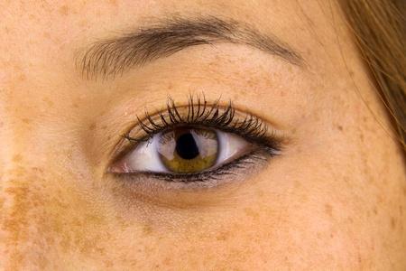 Gros plan des yeux de femme et de la peau environnante montrant des dommages de sun, communément appelé taches de rousseur. Banque d'images