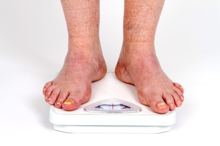 man measurement: Mature mans feet on scale as he takes his weight measurement with toe fungus disease.