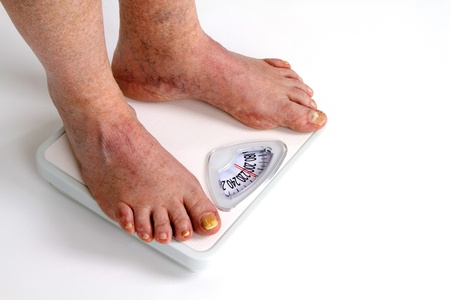 Old man with toe fungus weighs himself with feet on bathroom scale.  photo