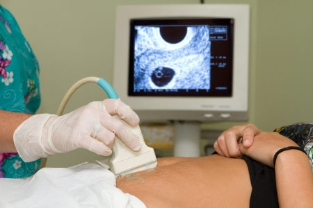 Sonographer technician holds an ultrasound transducer to diagnose the condition of a pregnant woman with a view of the woman Stock Photo
