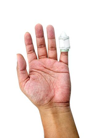 splint: Hand with a finger splint