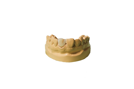 A partial denture mounted on a plaster study model and placed on a white background