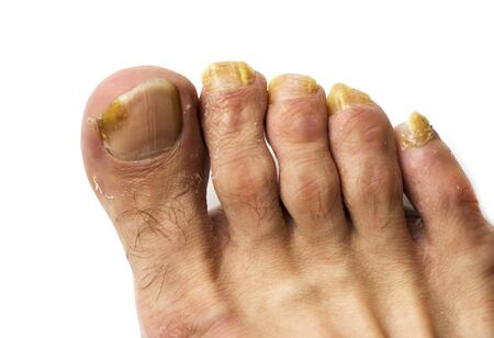 Close up fungus on the nails of a man's foot on a white background