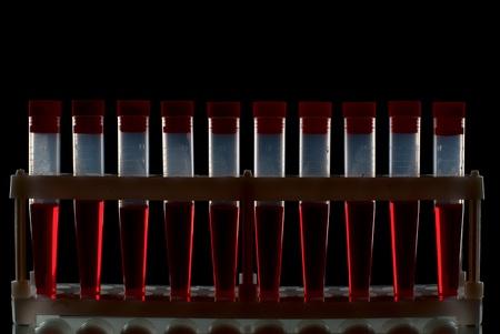 Set of laboratory equipment. Stock Photo - 8803440
