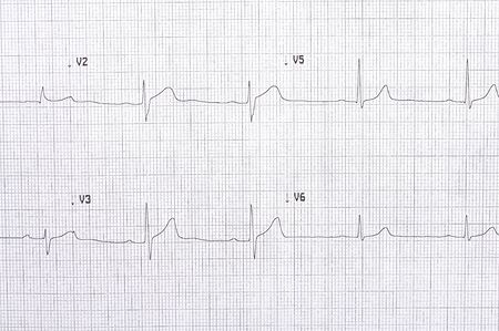 abnormal: Twelve lead electrocardiogram graph with abnormal first degree AV block Stock Photo
