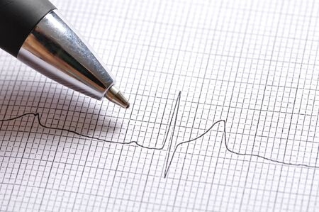 Closeup of pen pointing at twelve lead electrocardiogram graph showing Stock Photo - 16309017