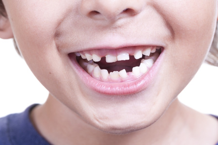 crooked teeth: Closeup of young child smiling and showing his loose crooked baby teeth Stock Photo