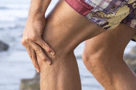 knee cap: Closeup of Caucasian mans knees wearing shorts at beach while massaging painful sore knee cap
