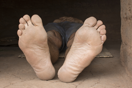 Dirty barefoot soles of poor man lying on mat on dirty floor of hut Stockfoto