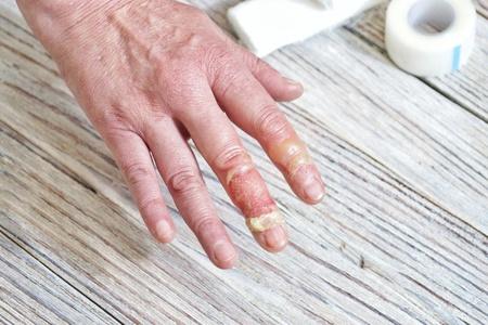 La mujer pone la mano escaldada en agua fría, quemaduras en la piel, lesiones con agua hirviendo, accidente en el hogar, comportamiento descuidado con agua hirviendo, vapor, escaldaduras en la piel, mano lesionada Foto de archivo