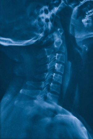 Cervical X-ray film
