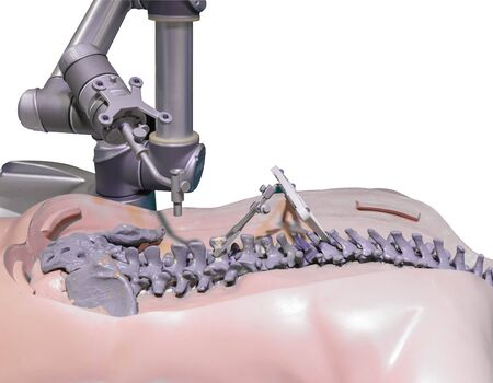 Surgical robot for spinal surgery Stock Photo