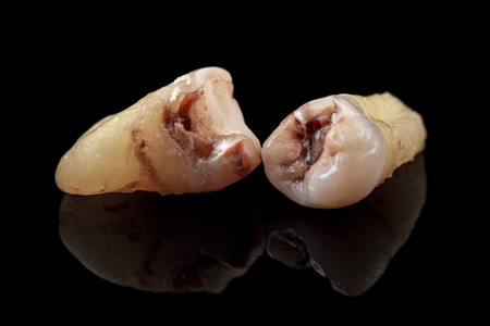 removed: The removed teeth damaged by caries on a black background. Close-up. Stock Photo