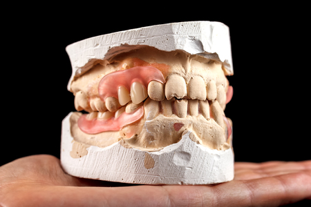 A denture on a gypsum base in the hand of a dentist. Close-up on a black background