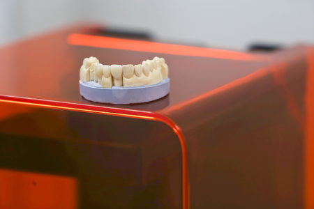 The lower jaw of a man, created on a 3d printer from a photopolymer material. Stereolithography 3D printer, technology of liquid photopolymerization under UV light. Modern medical technologies.