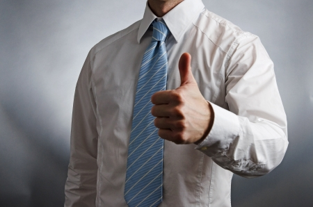 Thumbs Up Stock Photo - 16320546