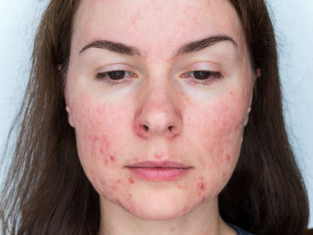 papulopustular rosacea, close-up of the patient's face - the consequences of prolonged wearing of a mask Reklamní fotografie