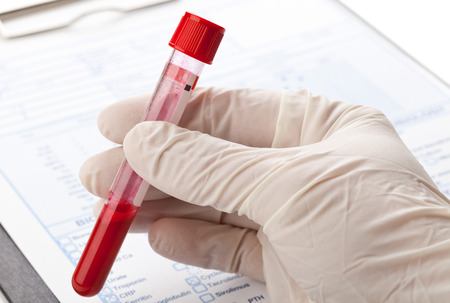 Hand with latex glove holding blood sample vial in front of blood test form