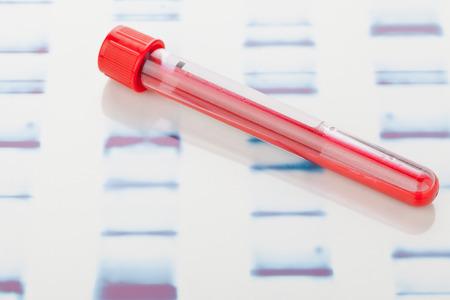 globulo rojo: Vial de la muestra de sangre en el fondo blanco prueba de ADN