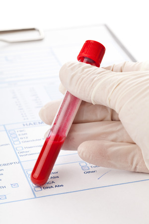 Hand with latex glove holding blood sample vial in front of blood test form photo