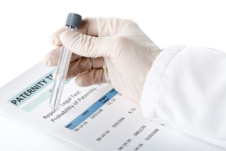 parentage: Doctor holding buccal swab in test tube on paternity DNA test result chart form