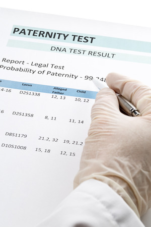 alleged: Paternity DNA test result chart form - doctor pointing at result value