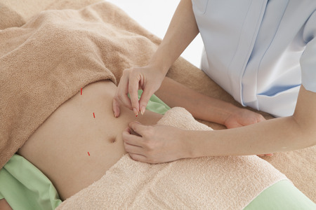 Asian women receiving acupuncture in stomach