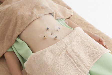 moxibustion: Women are receiving moxibustion treatment Become a supine