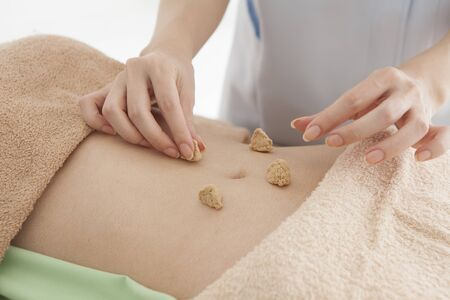 moxibustion: Women are receiving moxibustion treatment in stomach Stock Photo