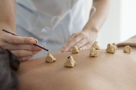 moxibustion: Moxibustion treatment Stock Photo