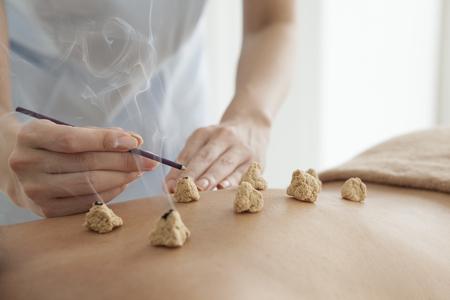 moxibustion: Women are receiving moxibustion treatment Stock Photo