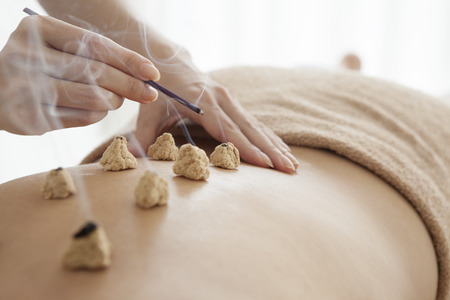 moxibustion: Women are receiving moxibustion treatment Stock Photo