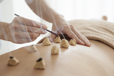 Women who have laid the moxibustion on the back Stockfoto