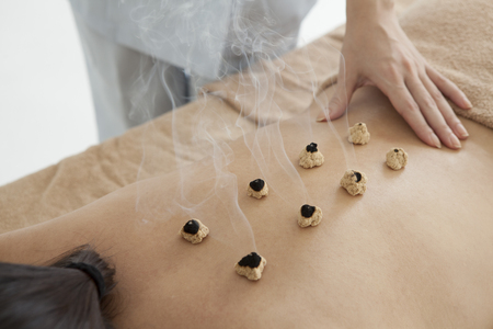 feels good: Women who have laid the moxibustion on the back Stock Photo