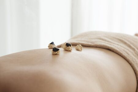 moxibustion: Women who are relaxed by laid the moxibustion on the back Stock Photo