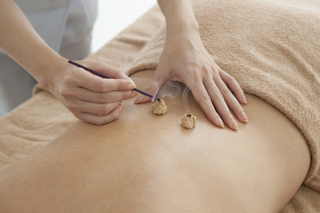 attend: Women are set fire to moxibustion Stock Photo